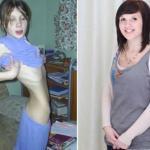 Ci ludzie pokonali anoreksję