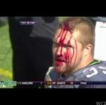 Owen Schmitt rozwalił sobie głowę... SAM!