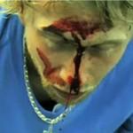 Składanka krwawych wypadków na desce