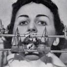 Narzędzia dentystyczne sprzed lat