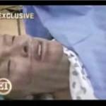 Cesarskie cięcie Anny Nicole Smith