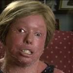 Dziewczynka cierpi na Syndrom Harlequina - straszne!