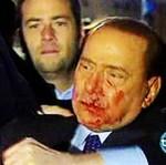 Silvio Berlusconi ZALAŁ SIĘ KRWIĄ!
