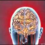 Lekarze wynaleźli NIEZAWODNY lek na ból głowy!