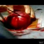 Aborcja z bliska