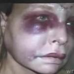 Kobieta zmasakrowana przez policjanta!