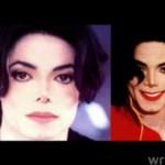 Michael Jackson nie wybielił skóry! BYŁ CHORY!