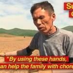 Stracił obie ręce w wypadku... ZROBIŁ NOWE!