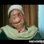 Szympans ZMASAKROWAŁ jej twarz! STRASZNE!
