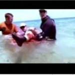 Ugryziony przez rekina