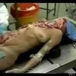 Autopsja kobiety