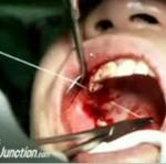 Wyjątkowo krwawa wizyta u dentysty!